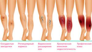 Лечение трофических язв нижних конечностей